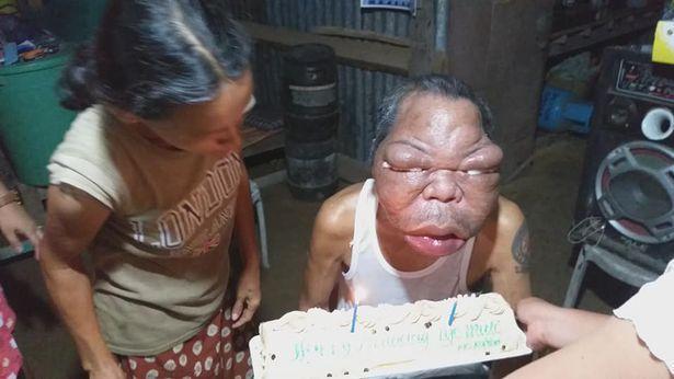 بیماری عجیبی که مرد فیلیپینی را تبدیل به زامبی نموده است!