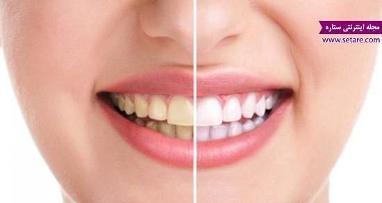 مسائل و بیماری های دندان را بیشتر بشناسید
